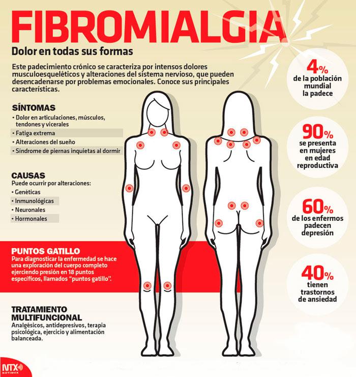 Resultado de imagen para fibromialgia