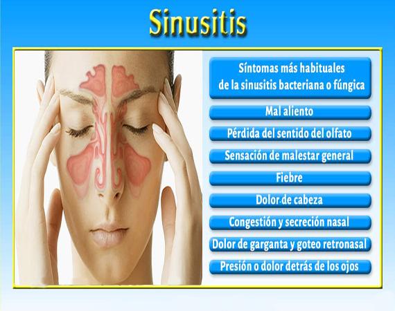 cómo tratar la sinusitis